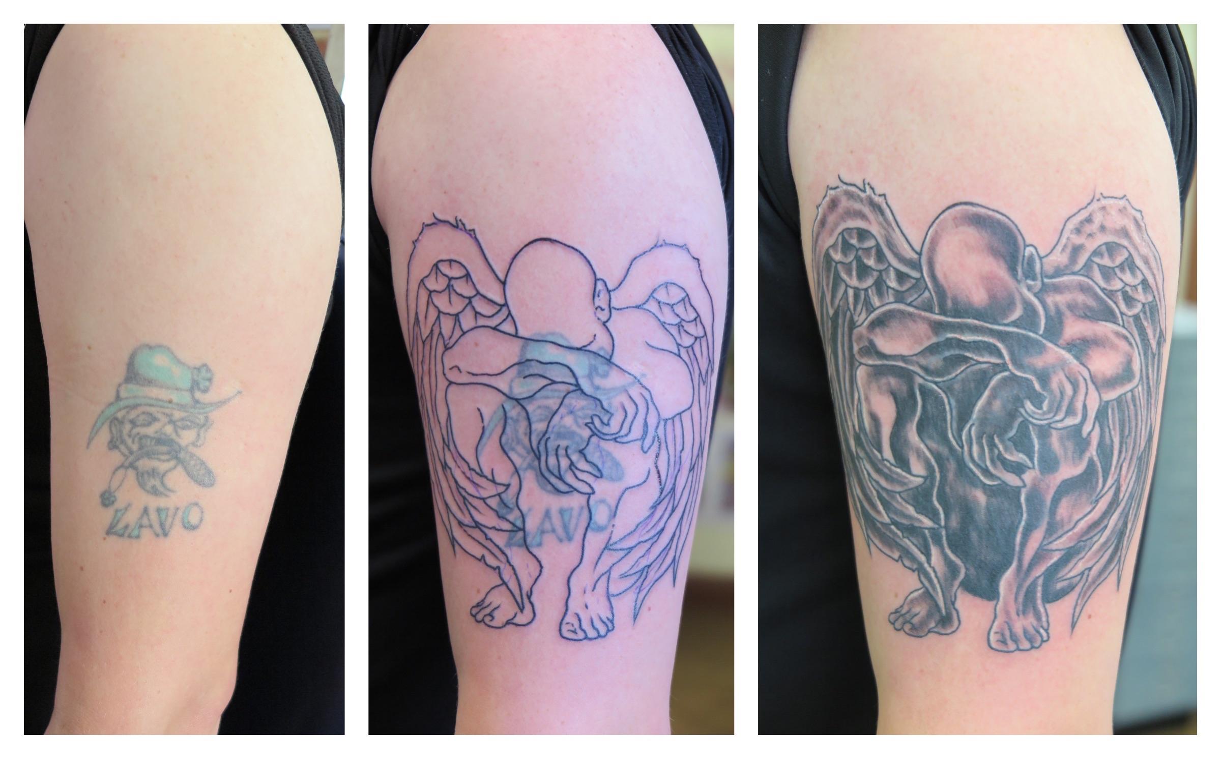 Tattoo laser removal ireland tattoo removal chicago suburbs for Laser tattoo removal chicago